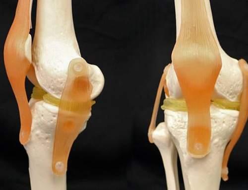 3D printed hydrogel knee implants mimics meniscus knee cartilage