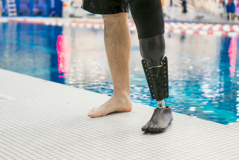 Dan Lasko with his 3D printed prosthesis. Photo via Northwell Health.