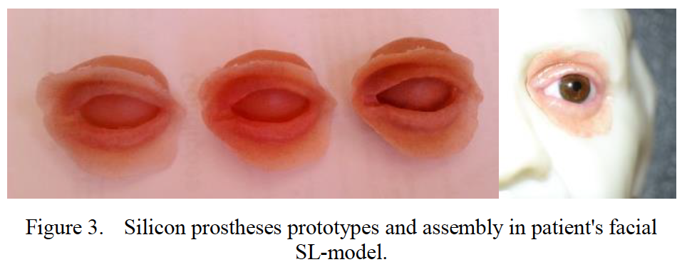 Silicone prototypes of the eye. Figure via Mafalda Couto, Margarida Machado, Ana Reis, Rui Neto and Jorge L. Alves