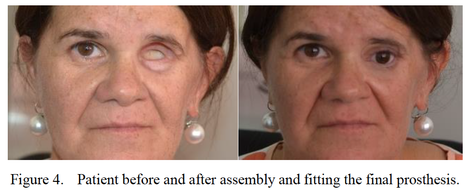 The 47 year old female patient before and after fitting a prosthetic eye produced with the help of 3D printing. Figure via Mafalda Couto, Margarida Machado, Ana Reis, Rui Neto and Jorge L. Alves