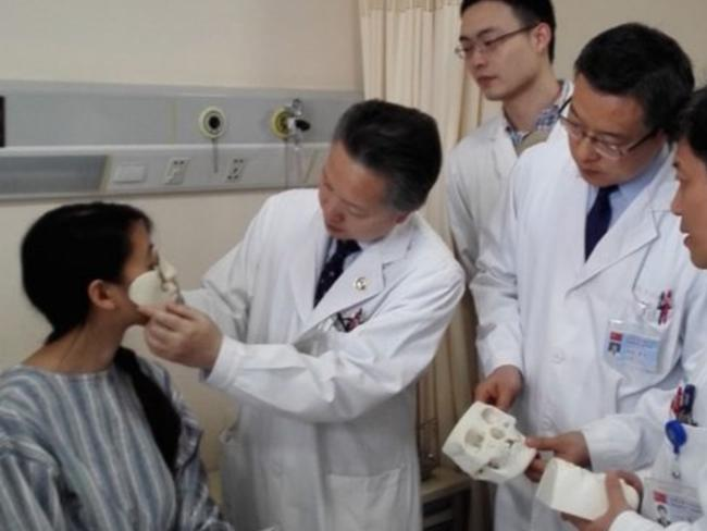 Doctors modelling Jin Qi's face with the 3D printed models. Photo via Xinhua.