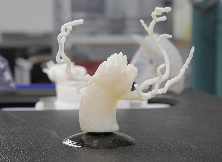 A 3D printed heart valve. Photo via GE Healthcare
