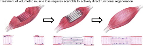 Separate research exploring treatments for VML, titled 'Biomimetic scaffolds for regeneration of volumetric muscle loss in skeletal muscle injuries'. Image via Acta Biomaterialia.