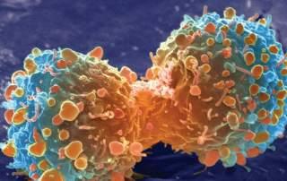 Cancer Cells Dividing, Biology, McDougal Littell, 2008