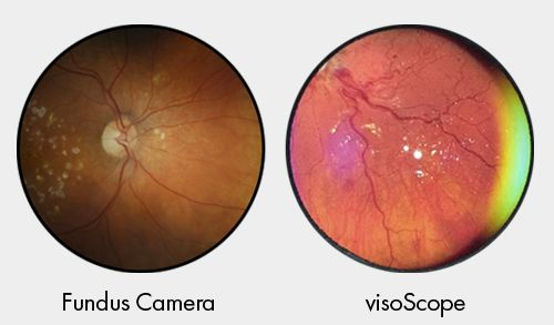 Comparison of the retina images taken on a conventional fundus camera and the visoScope. Image via oDocs.