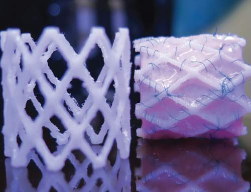 TU Eindhoven demonstrates 3D printed stents for paediatric heart surgery