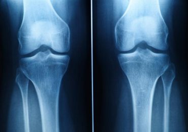 X-ray of cartilage damage in the knee. Image via medicalnewstoday