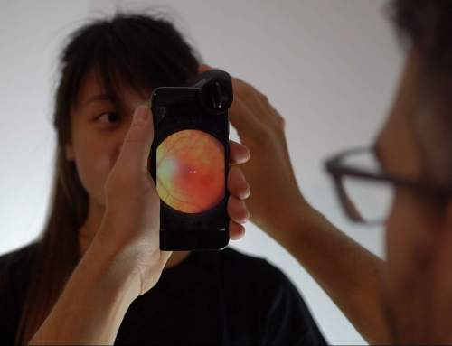 oDocs launches open source 3D printed smartphone eye care kit