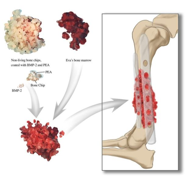 Graphic shows Eva's treatment process. Image via University of Glasgow.