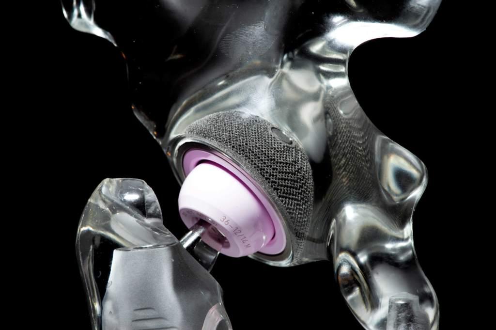 A 3D printed metal hip.