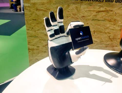Open Bionics taking part in world's first clinical trial of 3D printed bionic hands