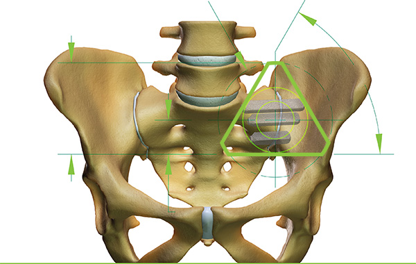 The location of the pelvic implant is shown within the green triangle. Image via SI-BONE.