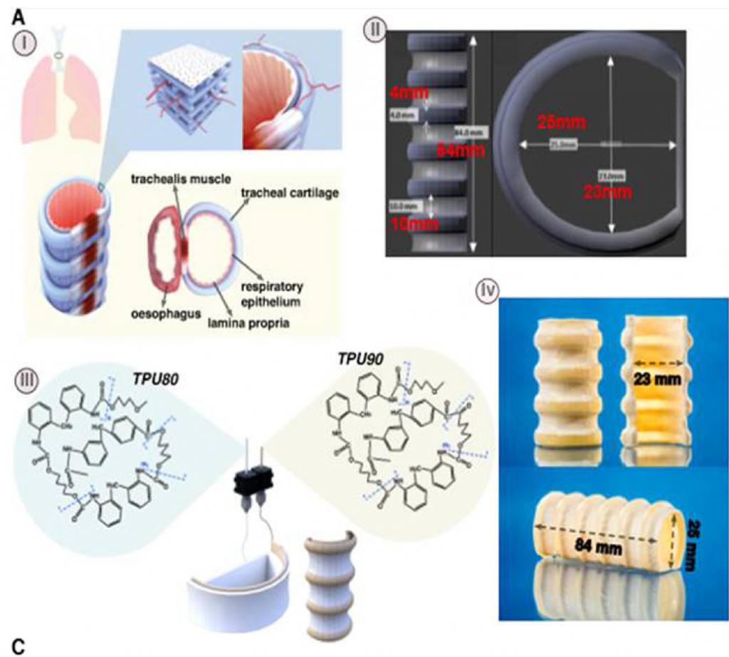 Structure of the 3D printed trachea model. Image via Tsai, Dixon, Hale, Darbyshire, Martin & de Mel