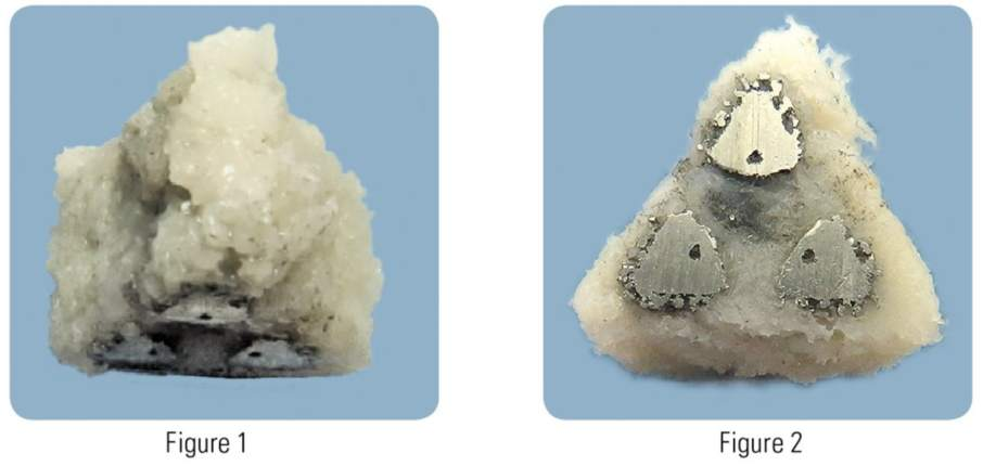 The triangular design of the iFuse 3D implant displaying bone growth. Image via PRNewsfoto/SI-BONE, Inc.