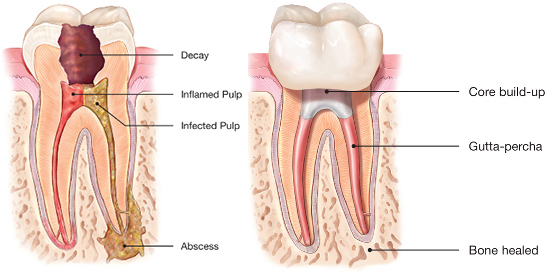 Diagram shows the typical root canal treatment. Images via American Association of Endodontists.
