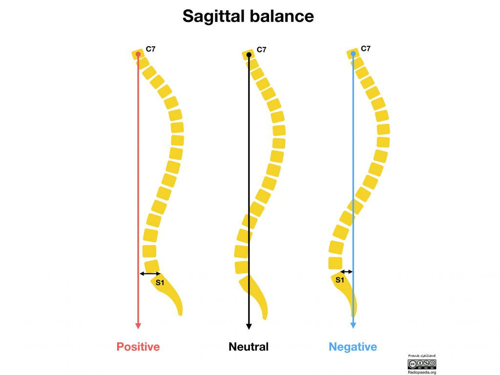 Diagram showing positive and negative sagittal imbalance in comparison to neutral spin positioning. Image via radiopaedia.org