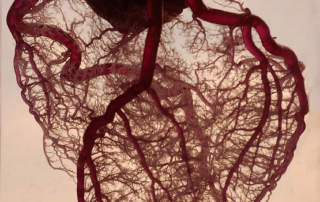 The blood vessel network of the heart. Photo via Rob Jones on Flickr.