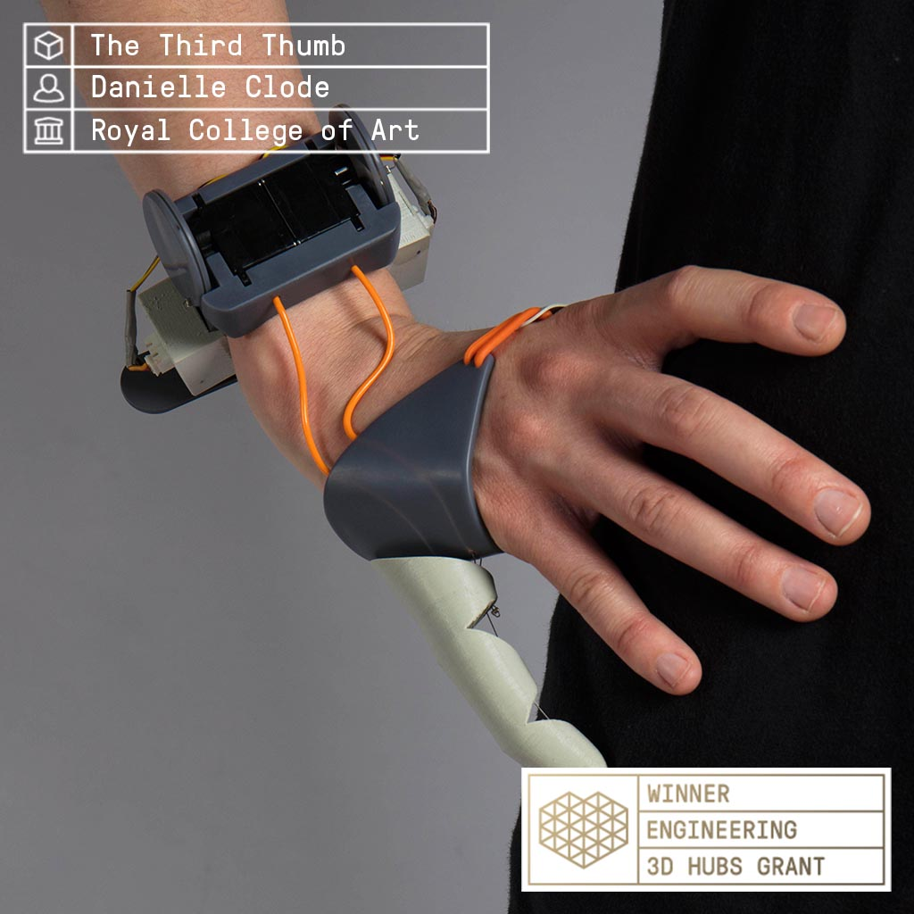 Dani Clode's Third Thumb prosthesis winner of the engineering category. Image via 3D Hubs.