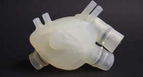 The silicone artificial heart. Image via Zurich Heart.