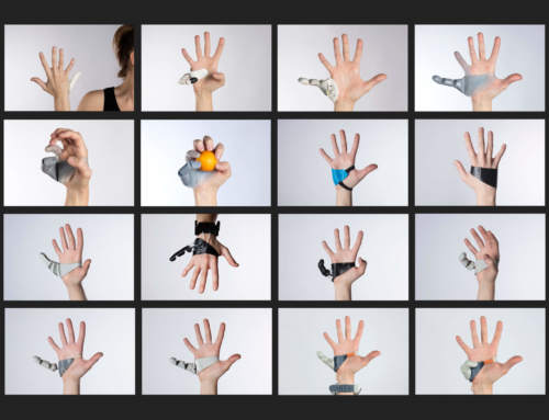 3D printed Third Thumb prosthesis gives superhuman abilities