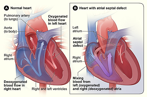 Example of an Atrial Septal Defect/Hole in the heart in comparison with a normal heart. Image via the National Heart, Lung and Blood Institute