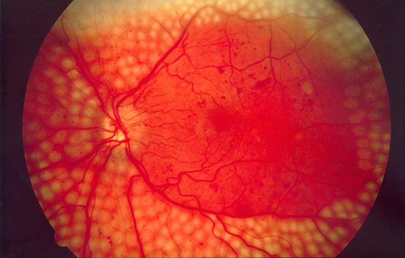 One third of the 415 million diabetics worldwide will develop diabetic retinopathy. Image via the NIH National Eye Institute