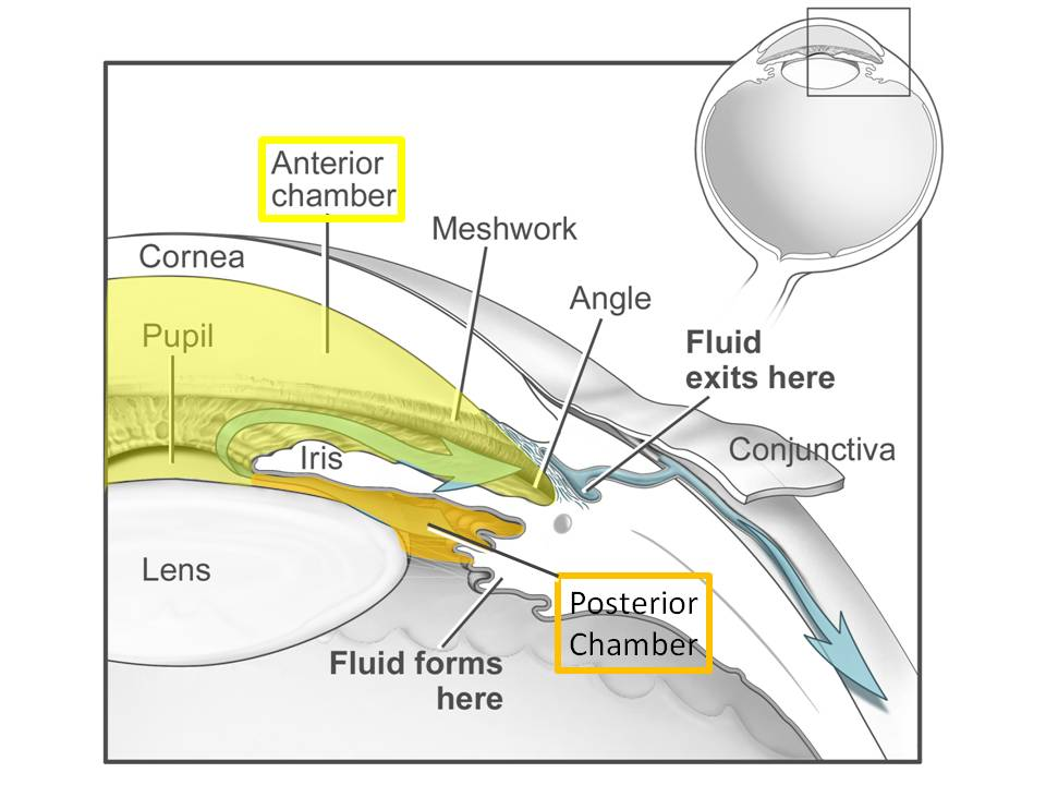 Schematic of fluid build up in the eye caused by TM blockage. Image via crvoquickstart