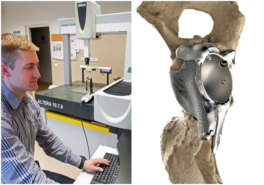 Left: Scanning a 3D printed hip implant. Right: model of the custom made implant in-situ. Image via Ortho Baltic
