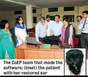 The CoEP team and Rucha's 3D printed prosthetic ear (inset). Image via Pune Mirror