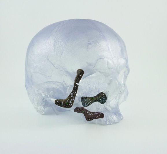 Model of 3D titanium implants in a skull/image via Materialise