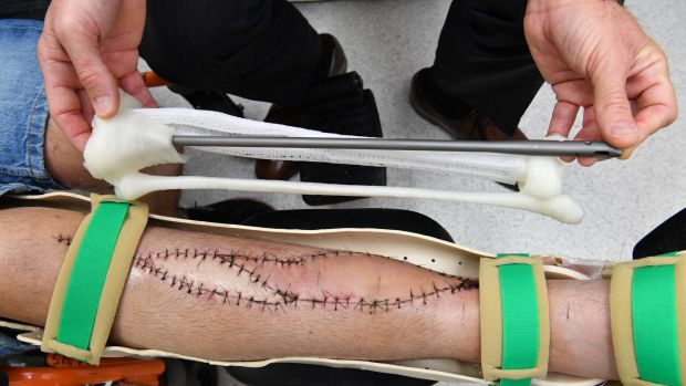A model of the 3D printed tibia bone next to Lichter's shin. Photo via The Sydney Morning Herald