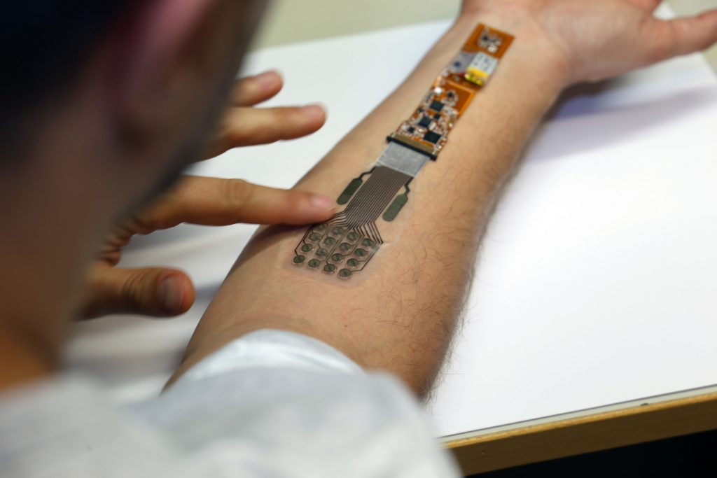 VTT's electronic wound care device. Photo via VTT Technical Research Centre of Finland Ltd.
