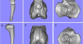 Bone models achieved using 3D scan data by the Einscan Pro. Image via Lan Li, Fei Yu et al. Scientific Reports.