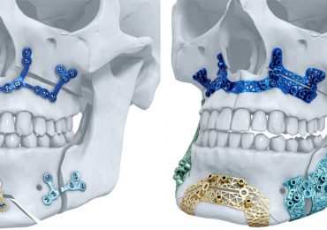 Materialise 3D printed titanium maxillofacial implants, distributed by DePuy Synthes. Image via Materialise NV on Twitter