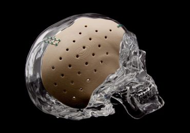 The OsteoFab® Patient Specific Cranial Device (OPSCD) from Oxford Performance Materials.