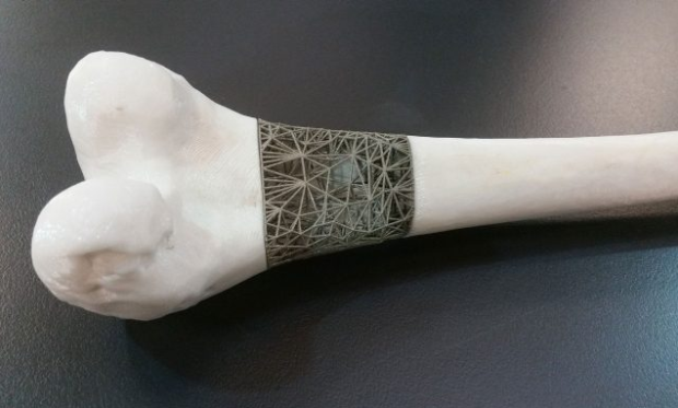 Example of custom 'Just in time implant' made as part of the Stryker/IMCRC funded project. Photo via RMIT