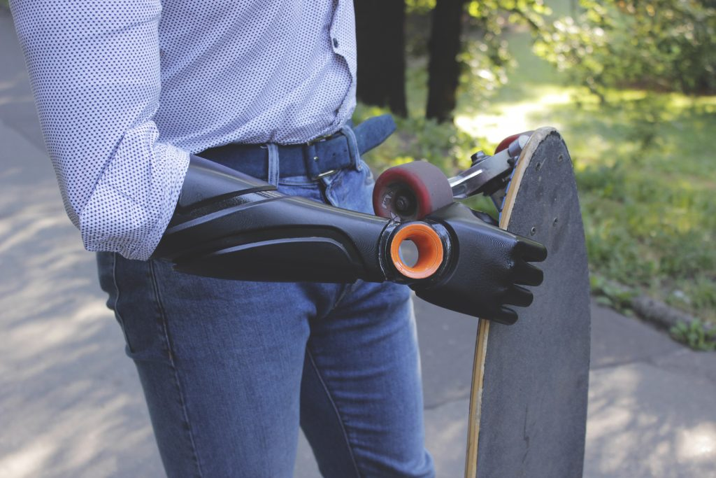 Piotr Sajdak holds a skateboard with his prosthetic arm. Photo via Glaze Prosthetics.