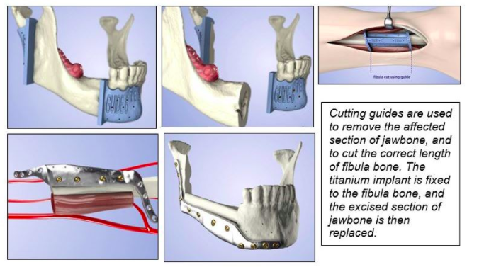 A World First  Nhs Combined Bone Graft And 3d Printed