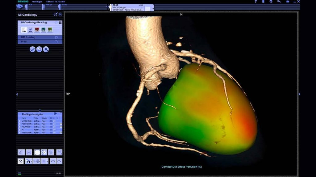 A detailed heart image in Siemens Healthineers syngo.via imaging platform. Image via Siemens Healthcare
