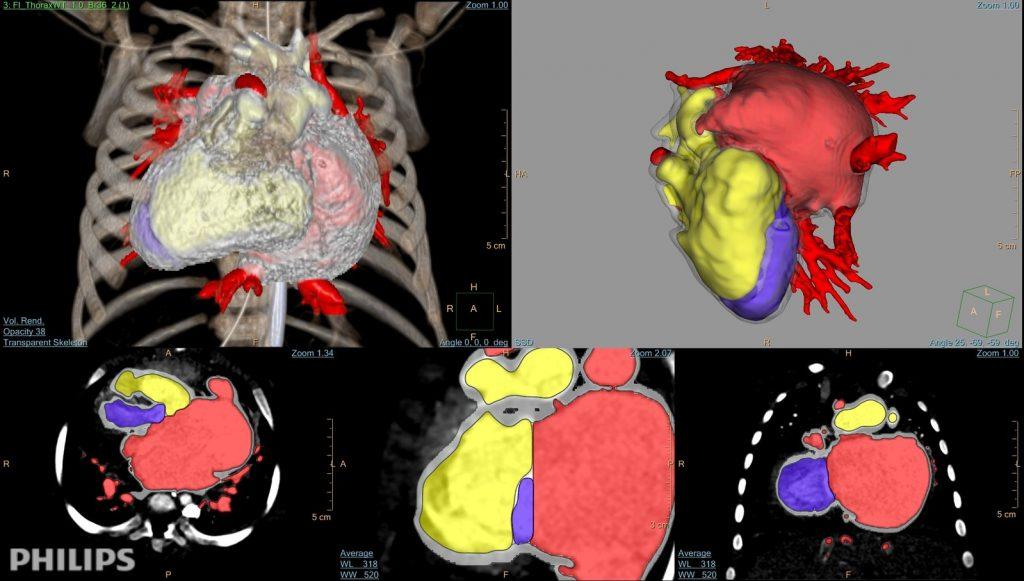 3D imaging to modeling in IntelliSpace Portal 10. Image via Royal Philips