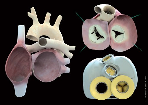 The CARMAT artificial heart, bottom right, opposite sections of the heart it is replacing. Image via CARMAT.