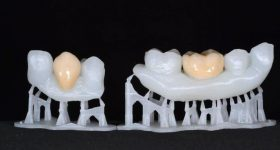 3D printed teeth models. Photo via Formlabs