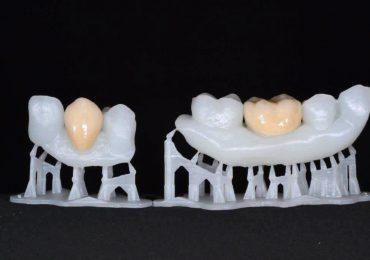 3D printed teeth models. Photo via Formlabs