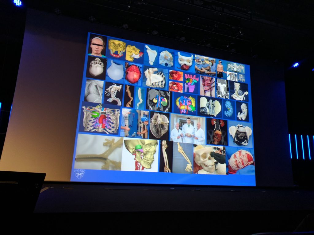 Medical applications of 3D printing presented by Jay Morris M.D. Codirector Clinical 3D Printing Lab of the Mayo Clinic during the 2017 Materialise World Summit. Photo by Michael Petch.