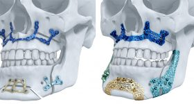 Materialise made the first 3D-printed titanium maxillofacial implants to receive clearance for the U.S. market.