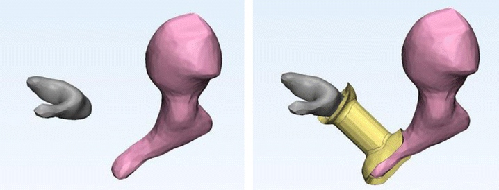 The ossicles without (left) and with one of Hirsch et al. 3D printed implants. Image via RSNA
