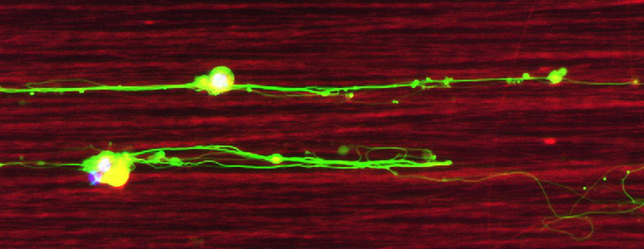 Fluorescent microscopy picture showing aligned biofunctionalized silk nanofibers (in red) on which 2 retinal ganglions cells (yellow) grow their axons (in green).