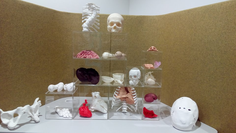 3D LifePrints range of 3D printed medical models. Photos via 3D LifePrints