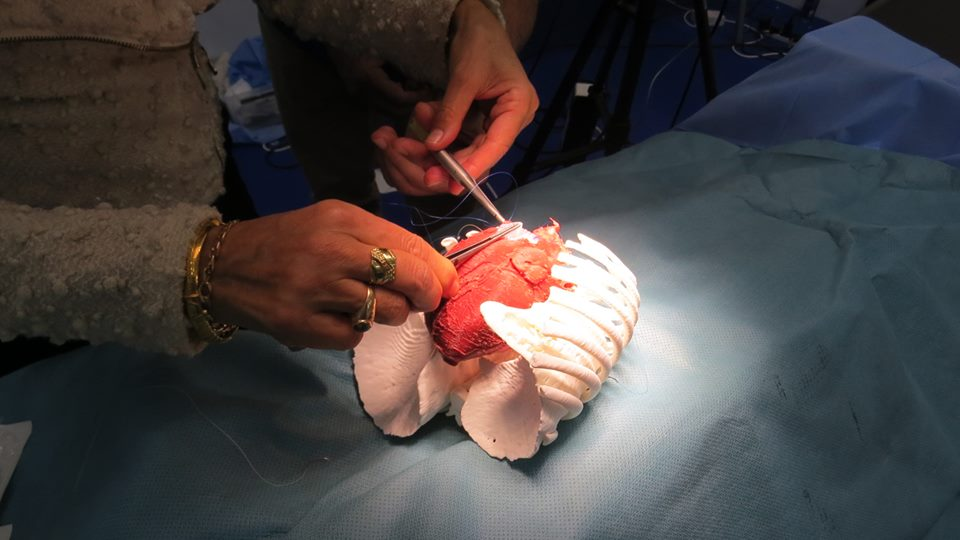 Test operation on a 3D printed heart model. Photo via 3D LifePrints
