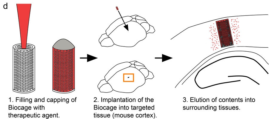 From fabrication, to implantation, to treatment - stages of the Biocage. Image via Scientific Reports